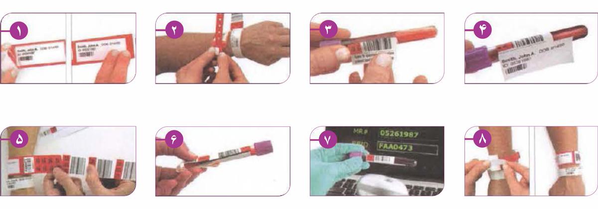 روش استفاده دستبند بیمار باکددار